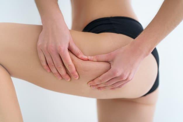 Piernas femeninas con celulitis