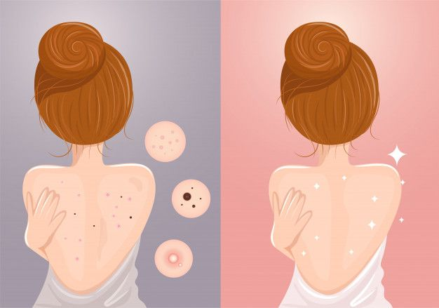 eliminar acne de la espalda