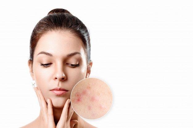por que sale acne y como evitarlo
